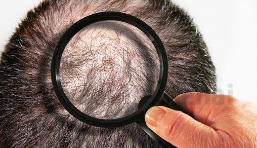 頭皮が教えてくれるハゲの前兆3つのサイン