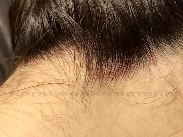 脂漏性脱毛症